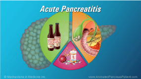 Animation - Acute Pancreatitis