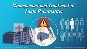 Animation - Management and Treatment of Acute Pancreatitis