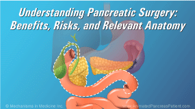 Animation - Understanding Pancreatic Surgery: Benefits, Risks, and Relevant Anatomy