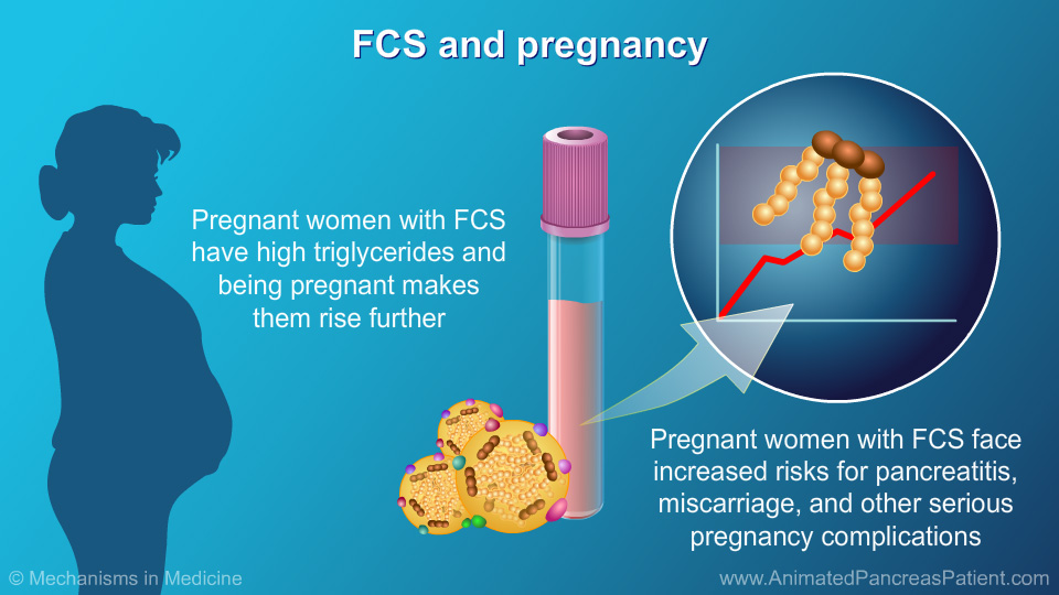 FCS and pregnancy