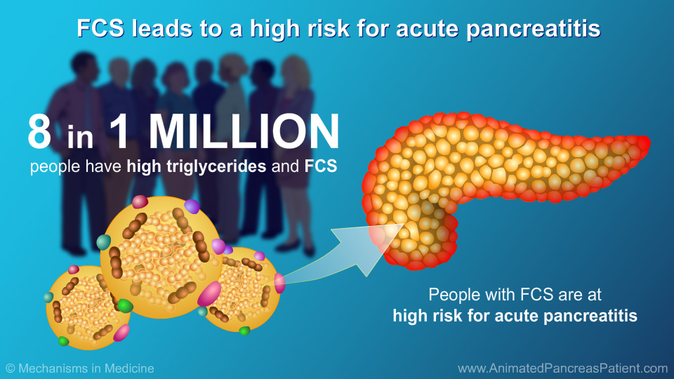FCS leads to a high risk for acute pancreatitis