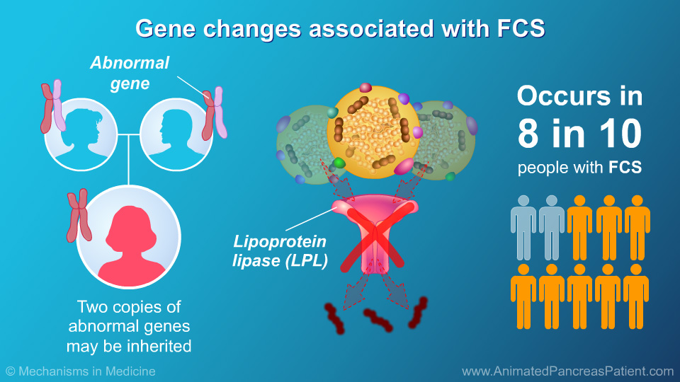 Gene changes associated with FCS