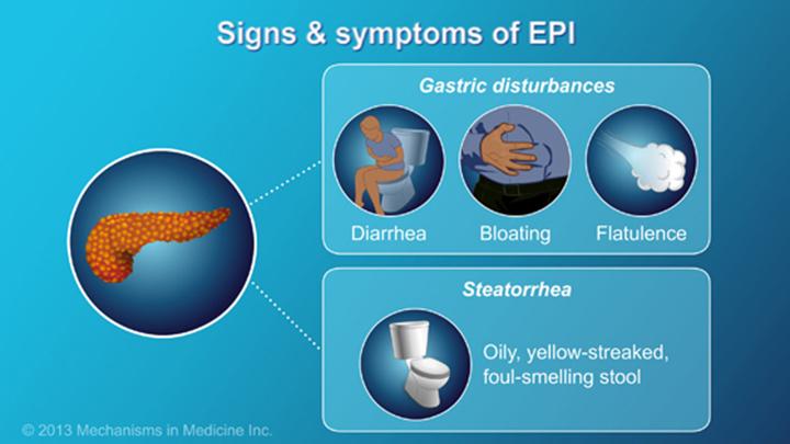 Exocrine Pancreatic Insufficiency Epi