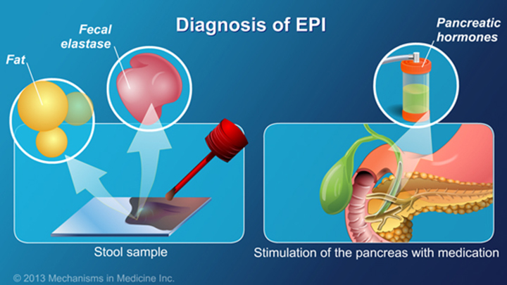 exocrine pancreatic insufficiency epi Exocrine pancreatic insufficiency (epi) is a syndrome of maldigestion and  malabsorption resulting from the failure of secretion of the pancreatic enzymes.