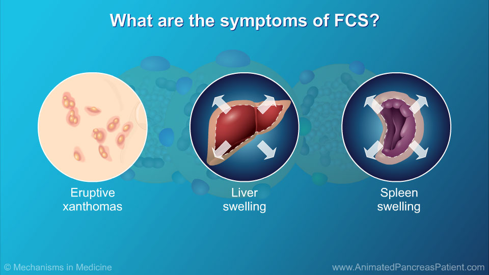 What are the symptoms of FCS? - 2