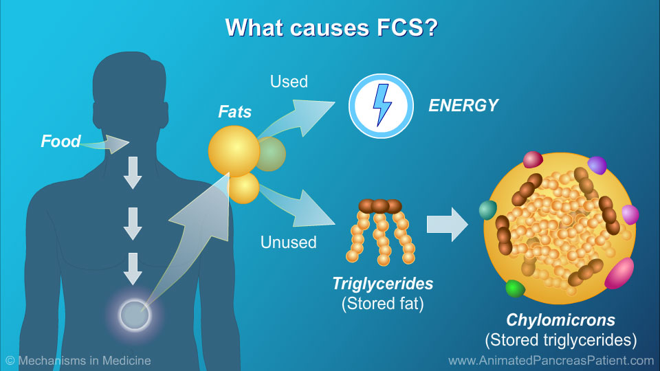 What causes FCS? - 1