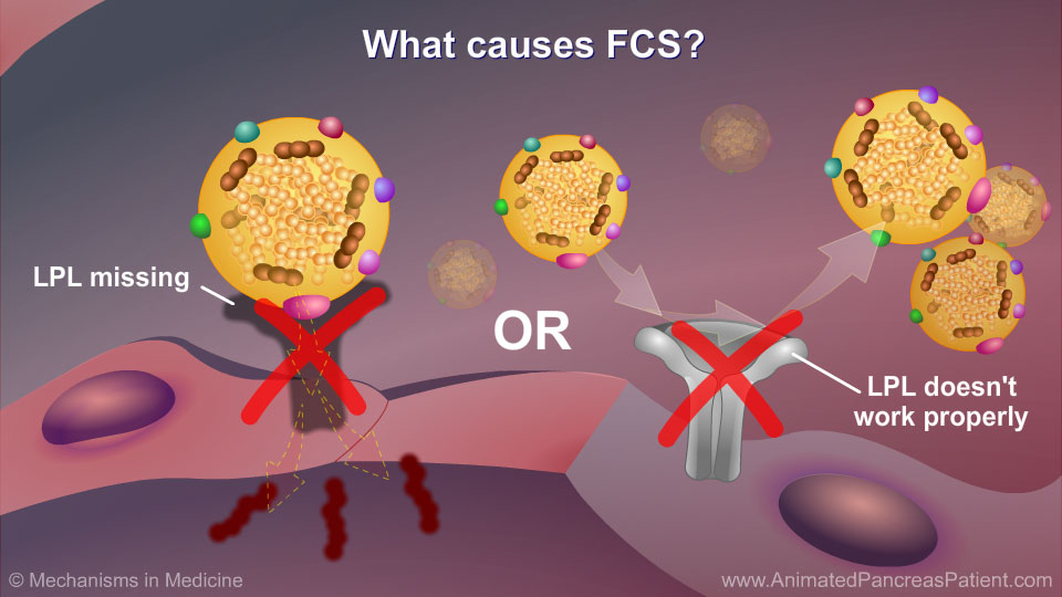 What causes FCS? - 3