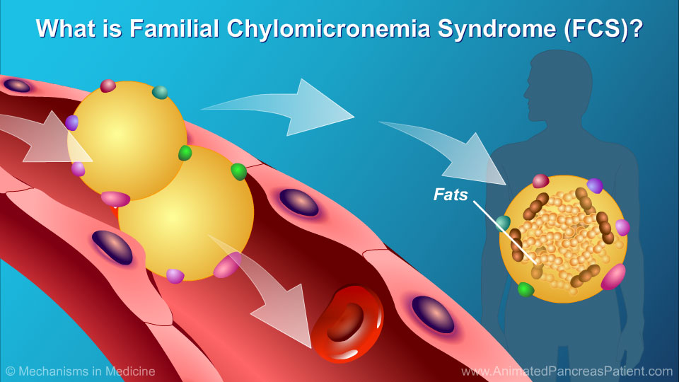 What is Familial Chylomicronemia Syndrome (FCS)?