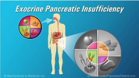 Animation - Exocrine Pancreatic Insufficiency (EPI)